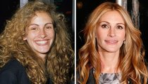 Julia Roberts: Good Genes or Good Docs?