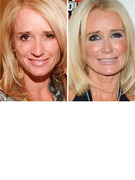Kim Richards&#039; New Nose -- See &quot;Real Housewives&quot; Pre-Plastic Surgery!
