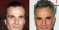 Daniel Day-Lewis: Good Genes or Good Docs?