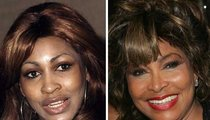 Tina Turner: Good Genes or Good Docs?