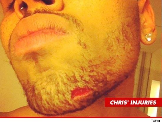 1123_chris-injuries_twitter
