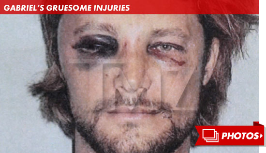 1126_gabriel_aubry_gruesome_injuries_footer