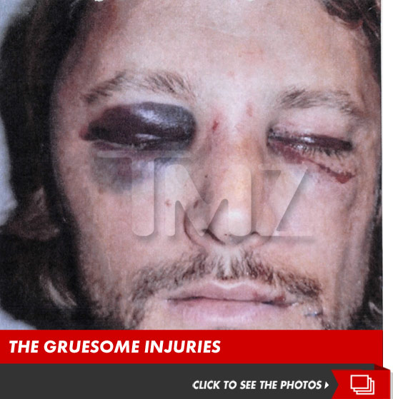 1126_gabriel_aubry_injuries_launch
