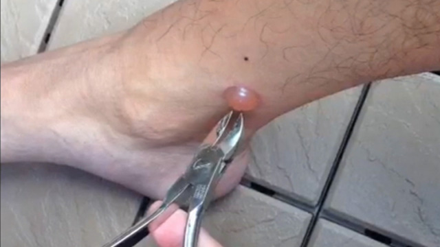 121412_yoris_foot_uncensored