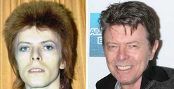 David Bowie: Good Genes or Good Docs?