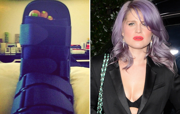 Kelly Osbourne Injures Her Ankle in a Pretty Embarrassing Way