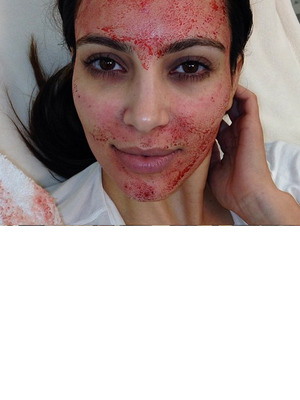 "Video: Kim Kardashian's Bizarre (& Bloody) ""Vampire"" Facial"