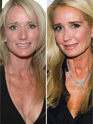 Kim Richards Opens Up About Nose Job & Painkiller-Free Recovery