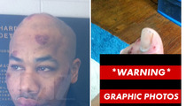 Rapper R. Prophet -- Graphic Post-Taser Photos