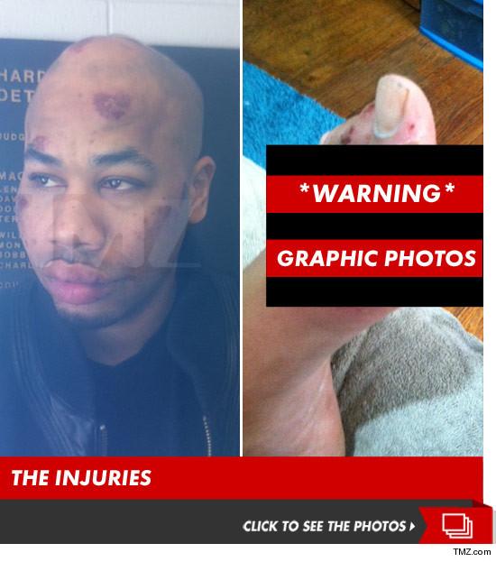 0424_tazer_injuries_launch
