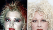 Cyndi Lauper: Good Genes or Good Docs?