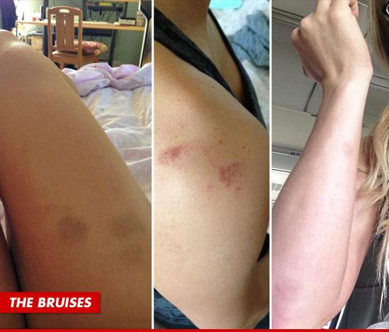 0604-Taryn-Terrell-bruises