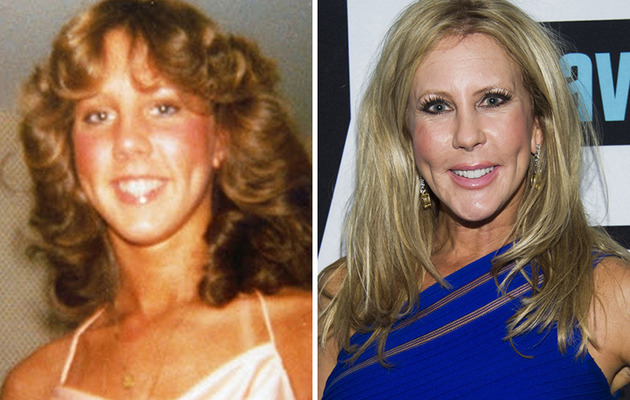 "See ""The Real Housewives of Orange County"" Before and After Plastic Surgery!"