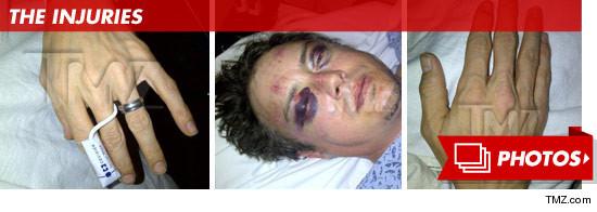 0726-jason-london-injuries-mini