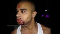 Raz B -- BOTTLE TO THE FACE ... Singer Hospitalized After Nightclub Attack