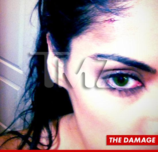 0903_royce_white_damage_eye_sub