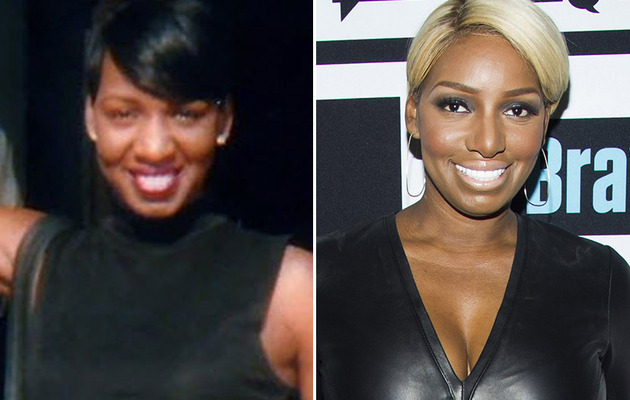NeNe Leakes Denies Her Plasticity -- What Has She Really Had Done?