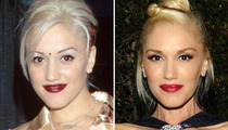 Gwen Stefani: Good Genes or Good Docs?