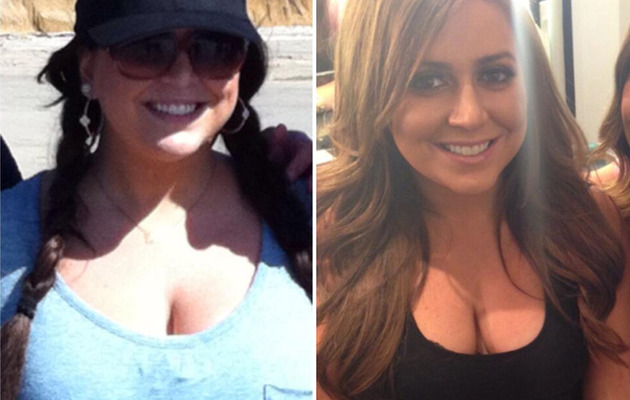 """Real Housewives"" Star Lauren Manzo Gets Breast Reduction"