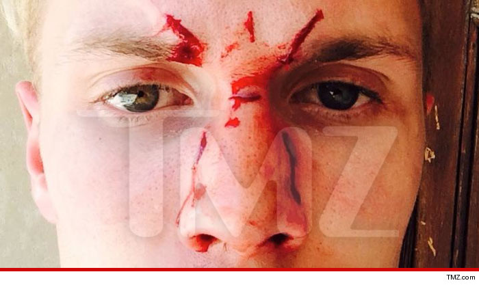 Paris Hilton's Brother Barron -- Lindsay Lohan's Thug BEAT MY FACE IN