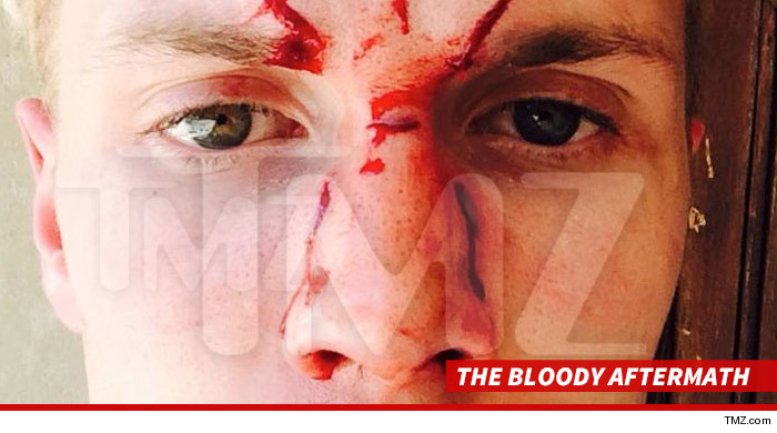 1208_the_bloody_aftermath_tmz