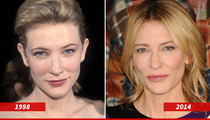 Cate Blanchett: Good Genes or Good Docs?