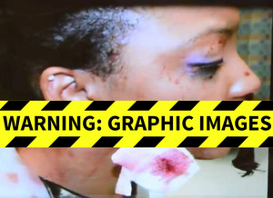 Da Brat's Bottle Victim -- The $6.4 MILLION Injuries ... Gnarly Bloody Gashed Face