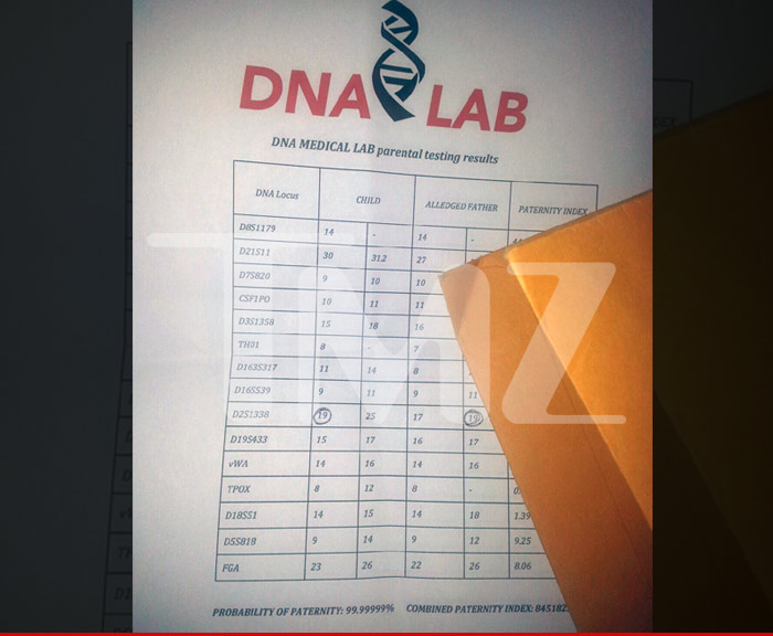 Michael Jackson S Alleged Son Dna Test Results Bogus