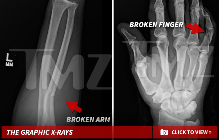 0313-broken-arm-and-finger-gallery-launch-01