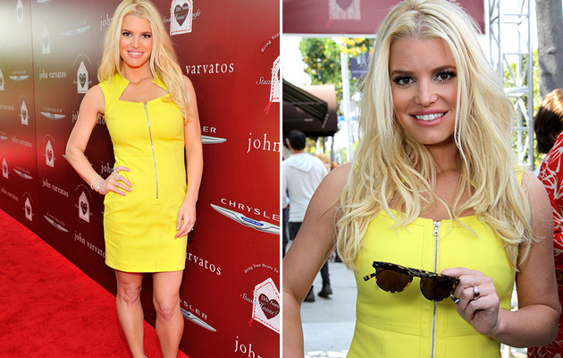 Jessica Simpson Flaunts Slim Figure in Yellow Mini Dress