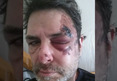 'Big Brother' Winner Evel Dick -- I Got Hit By a Car .