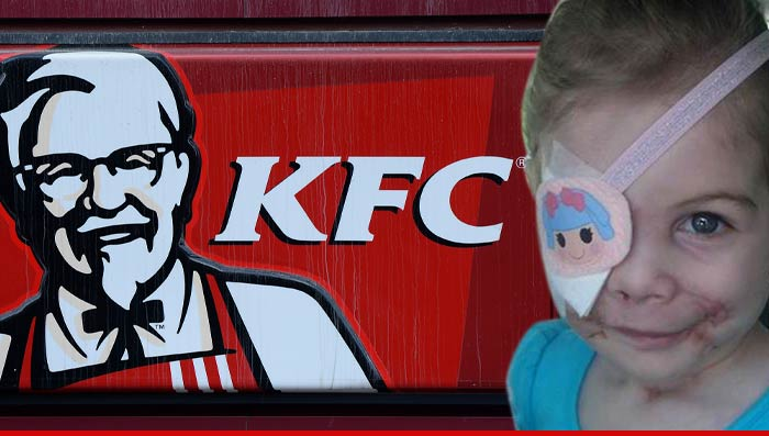 KFC Concludes 'Pit Bull Girl' Story is BOGUS