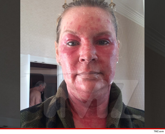 0724-jackie-siegel-burn-face-tmz-01