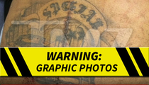 Suge Knight -- 6 Bullet Holes & Huge Surgery Scar (PHOTOS)