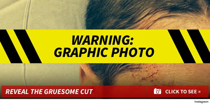 Ben-Mckenzie-Gallery-Launch-Template-injury-01