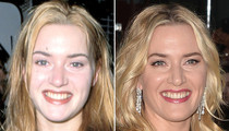Kate Winslet: Good Genes or Good Docs?!