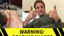 Tony Hawk -- GNARLY LEG INJURY ... During Skate Accident