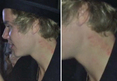 Justin Bieber - LOVE BITES
