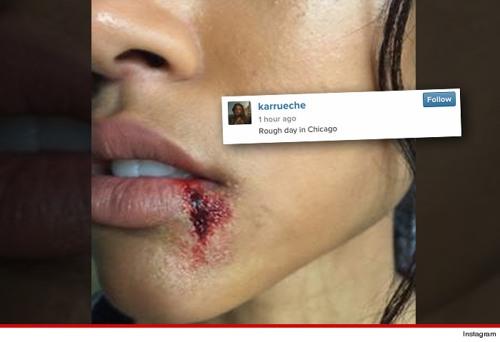 Karrueche Tran -- Oh, That Bloody Lip? It's Just ... (PHOTO)