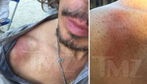 Chris Cornell -- Burned On Music Video Set in Mock Hanging (PHOTOS)