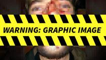 Danzig – Cops Investigate Alleged Fan Assault