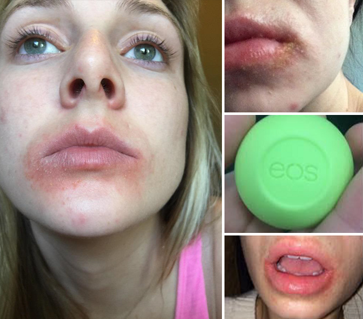 different types of mouth sores #10