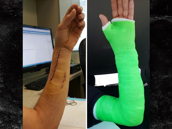0314-josh-ravin-arm-broken-stitches-TWITTER-01