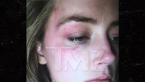 Amber Heard Claims Domestic Violence, Seeks Restraining Order Against Johnny Depp