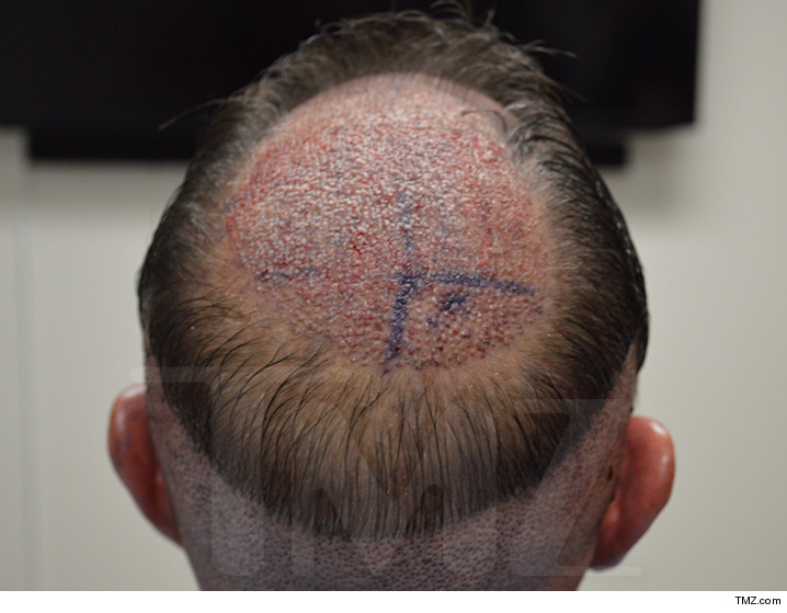 0607_micheal_lohan_hair-transplant_tmz_wm