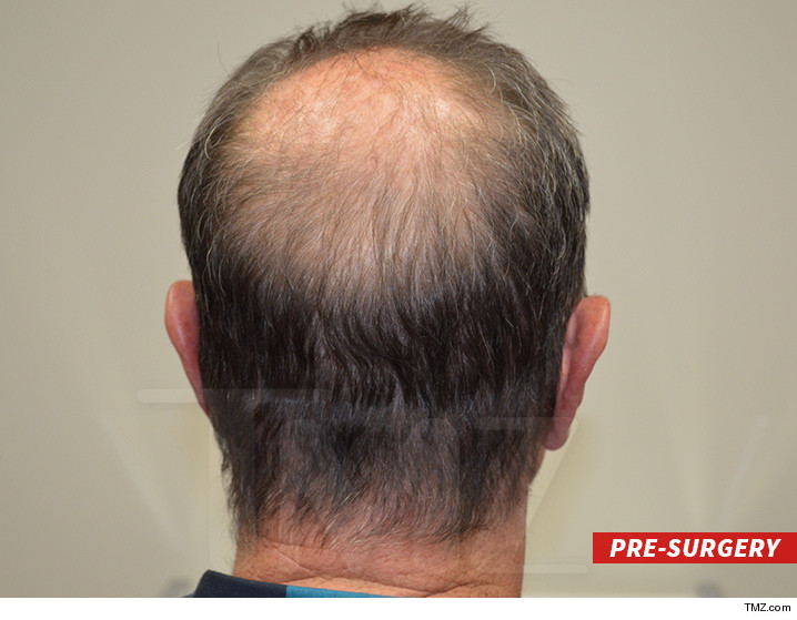 0607_micheal_lohan_hair-transplant_tmz_wm_BEFORE