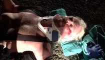 Richard Branson -- If My Face Didn't Break My Fall ... I'd Be DEAD! (PHOTOS)