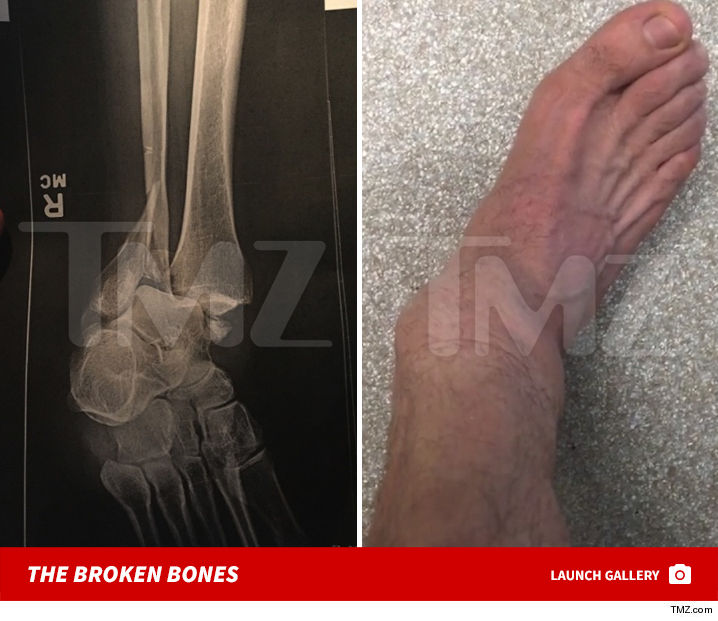 steveo_injury_tmz_excl_launch.JPG