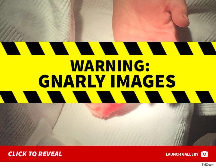 1002-lindsay-lohan-finger-cut-off-Click-To-Reveal-TMZ-02