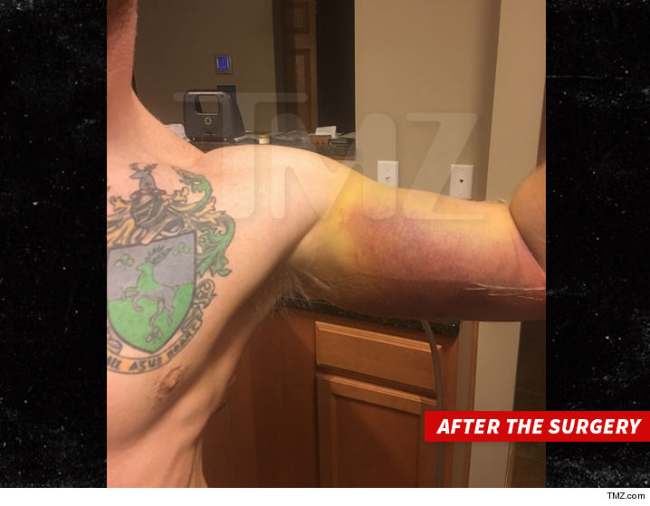 1006-larry-the-cable-guy-arm-wrestler-after-surgery-TMZ-01